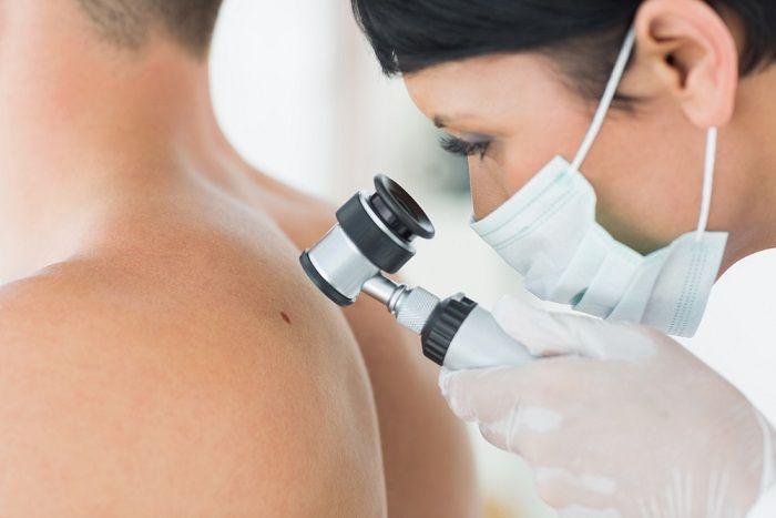 Диагностика рака кожи в Германии
