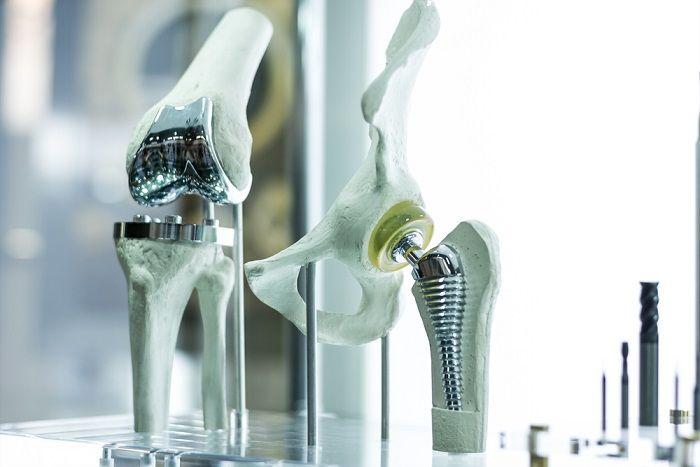 Эндопротезирование суставов в Германии
