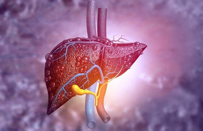 Лечение рака печени в Германии